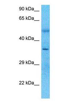PARVG Antibody - Western blot of PARVG Antibody with human Large intestine Tumor lysate.  This image was taken for the unconjugated form of this product. Other forms have not been tested.