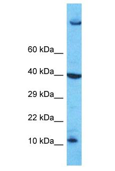 PATE4 Antibody - PATE4 antibody Western Blot of Jurkat. Antibody dilution: 1 ug/ml.  This image was taken for the unconjugated form of this product. Other forms have not been tested.