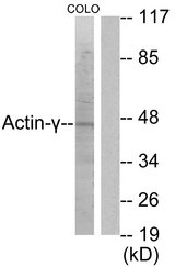 Western blot analysis of lysates from COLO205 cells, using Actin-gamma2 Antibody. The lane on the right is blocked with the synthesized peptide.