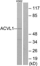 ACVRL1 Antibody - Western blot analysis of lysates from K562 cells, using ACVL1 Antibody. The lane on the right is blocked with the synthesized peptide.