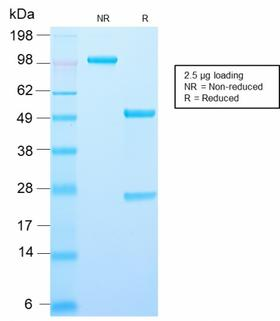 AMACR / P504S Antibody - SDS-PAGE Analysis Purified Recombinant Rabbit Monoclonal Antibody (AMACR/2748R)Confirmation of Purity and Integrity of Antibody.