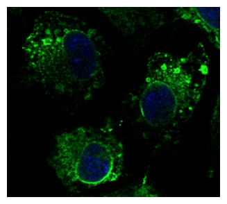 CANX / Calnexin Antibody - Immunofluorescence - anti-CANX Ab in Hepa1-6 cells at 1:100 dilution; cells were fixed with 4% of PFA