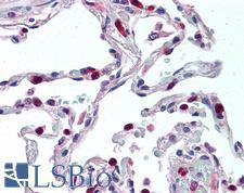 CCR1 Antibody - Anti-CCR1 antibody IHC of human lung. Immunohistochemistry of formalin-fixed, paraffin-embedded tissue after heat-induced antigen retrieval. Antibody concentration 5 ug/ml.