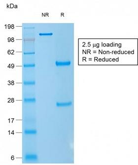 CD1A Antibody - SDS-PAGE Analysis Purified CD1a Mouse Recombinant Monoclonal Antibody (rC1A/711). Confirmation of Purity and Integrity of Antibody.