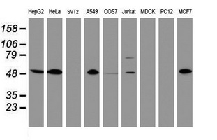 CD4 Antibody - Western blot of extracts (35 ug) from 9 different cell lines by using anti-CD4 monoclonal antibody (HepG2: human; HeLa: human; SVT2: mouse; A549: human; COS7: monkey; Jurkat: human; MDCK: canine; PC12: rat; MCF7: human).