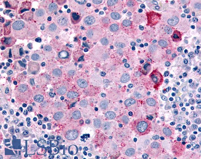 CDC7 Antibody - Anti-CDC7 antibody IHC of human Skin, Melanoma. Immunohistochemistry of formalin-fixed, paraffin-embedded tissue after heat-induced antigen retrieval.