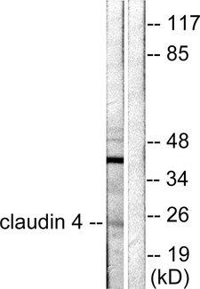 CLDN4 / Claudin 4 Antibody - Western blot analysis of lysates from HeLa cells, using Claudin 4 Antibody. The lane on the right is blocked with the synthesized peptide.
