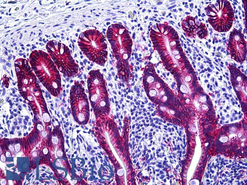 EPCAM Antibody - Anti-EPCAM antibody IHC of human intestine. Immunohistochemistry of formalin-fixed, paraffin-embedded tissue after heat-induced antigen retrieval. Antibody dilution 1:100.
