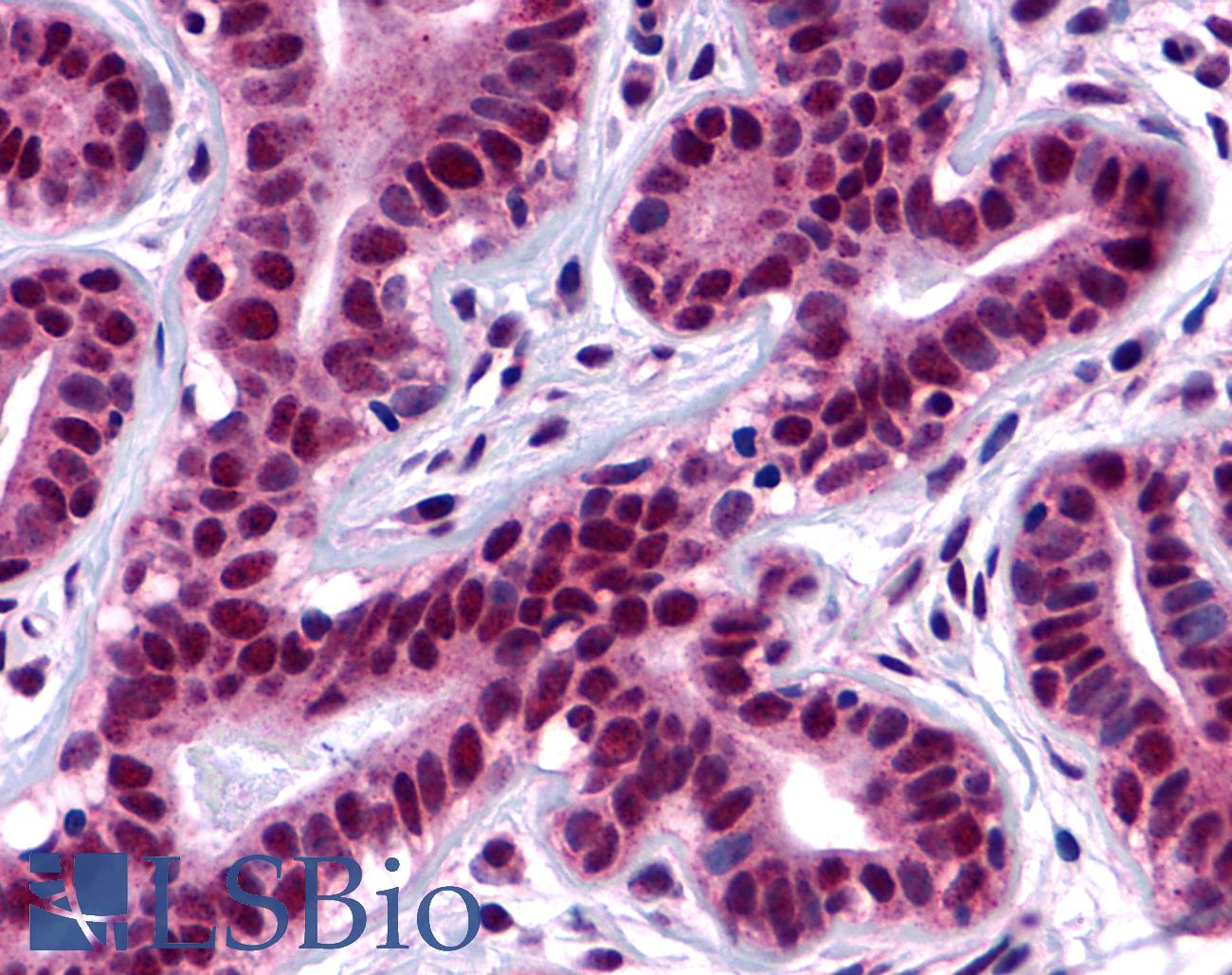 FAK / Focal Adhesion Kinase Antibody - Anti-FAK antibody IHC of human ductal and lobular epithelium. Immunohistochemistry of formalin-fixed, paraffin-embedded tissue after heat-induced antigen retrieval.
