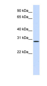 HGF / Hepatocyte Growth Factor Antibody - HGF antibody Western blot of Placenta lysate. This image was taken for the unconjugated form of this product. Other forms have not been tested.