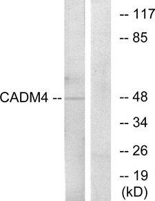 IGSF4C / CADM4 Antibody - Western blot analysis of lysates from RAW264.7 cells, using CADM4 Antibody. The lane on the right is blocked with the synthesized peptide.