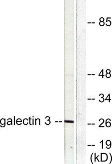 LGALS3 / Galectin 3 Antibody - Western blot analysis of lysates from HeLa cells, using Galectin 3 Antibody. The lane on the right is blocked with the synthesized peptide.