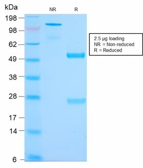 Mucin 2 / MUC2 Antibody - SDS-PAGE Analysis Purified MUC2 Rabbit Recombinant Monoclonal Antibody (MLP/2970R). Confirmation of Purity and Integrity of Antibody.