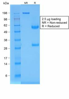 NKX2-1 / Thyroid-Specific TF Antibody - SDS-PAGE Analysis Purified TTF-1 Mouse Recombinant Monoclonal Antibody (rNX2.1/690). Confirmation of Purity and Integrity of Antibody.
