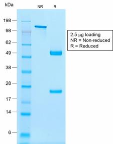 NKX2-2 Antibody - SDS-PAGE Analysis Purified NKX2.2 Mouse Recombinant Monoclonal Antibody (rNX2/294). Confirmation of Purity and Integrity of Antibody.