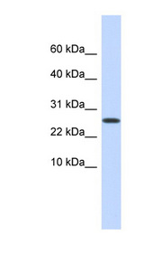 PDPN / Podoplanin antibody Western blot of Placenta lysate. This image was taken for the unconjugated form of this product. Other forms have not been tested.
