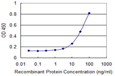 Peripherin Antibody - Detection limit for recombinant GST tagged PRPH is 1 ng/ml as a capture antibody.