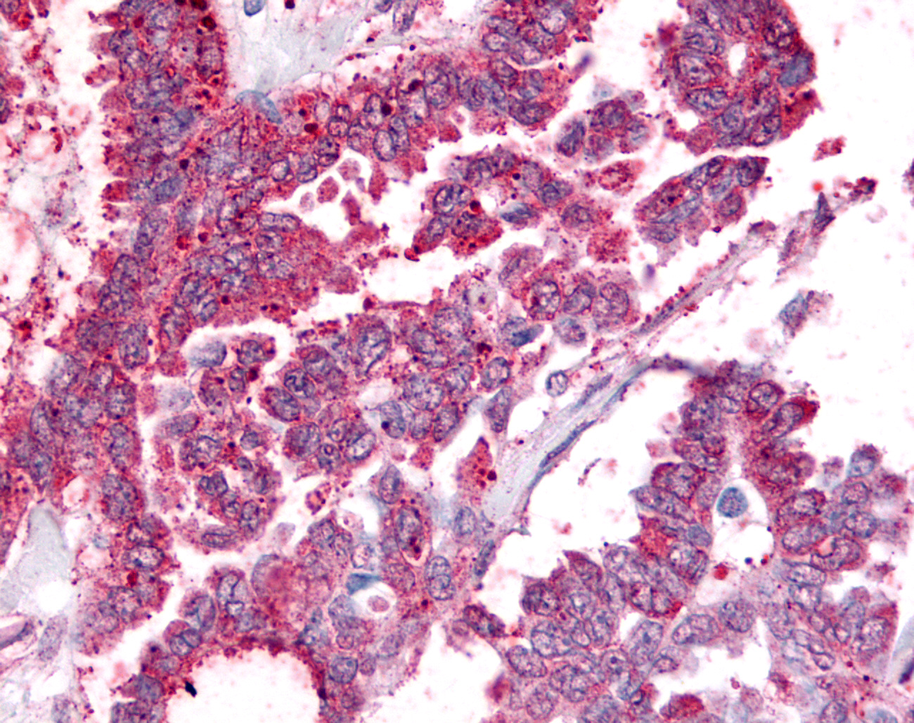 PGES / PTGES Antibody - Anti-PGES / PTGES antibody IHC of human Ovary, Carcinoma. Immunohistochemistry of formalin-fixed, paraffin-embedded tissue after heat-induced antigen retrieval.