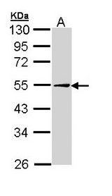 PLIN2 / ADFP / Adipophilin Antibody - Sample (30 ug of whole cell lysate). A: Hep G2. 10% SDS PAGE. ADFP antibody diluted at 1:1000.