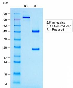 POMC / Proopiomelanocortin Antibody - SDS-PAGE Analysis Purified ACTH Mouse Recombinant Monoclonal Antibody (r57). Confirmation of Purity and Integrity of Antibody.