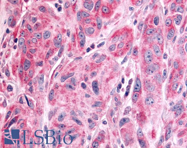 PTPRE / PTP Epsilon Antibody - Anti-PTPRE / PTP Epsilon antibody IHC of human Skin, Melanoma. Immunohistochemistry of formalin-fixed, paraffin-embedded tissue after heat-induced antigen retrieval.