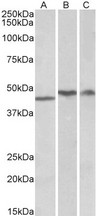 TDP-43 / TARDBP Antibody - Goat Anti-TARDBP  Antibody (1µg/ml) staining of Human Cerebellum (A), Frontal Cotex (B) and Hippocampus (C) lysates (35µg protein in RIPA buffer). Primary incubation was 1 hour. Detected by chemiluminescencence.