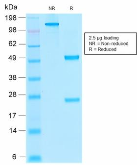 THBD / CD141 / Thrombomodulin Antibody - SDS-PAGE Analysis  Purified Thrombomodulin Mouse Recombinant MAb (rTHBD/1591). Confirmation of Purity and Integrity of Antibody.