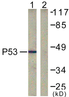 TP53 / p53 Antibody - Western blot analysis of lysates from COS7 cells, treated with TSA 400nM 24h, using p53 Antibody. The lane on the right is blocked with the synthesized peptide.