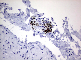 IHC of paraffin-embedded Human bladder tissue using anti-PAX5 mouse monoclonal antibody.