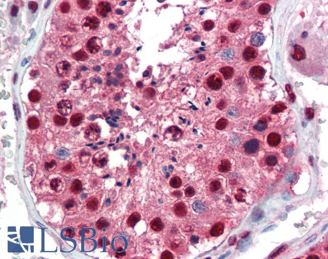 Anti-PAX7 antibody IHC of human testis. Immunohistochemistry of formalin-fixed, paraffin-embedded tissue after heat-induced antigen retrieval. Antibody LS-B3490 concentration 5 ug/ml.  This image was taken for the unconjugated form of this product. Other forms have not been tested.