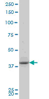 Western blot of PBK/TOPK (I4) pAb in extracts from COS7 cells treated with Nocodazole 1 ug/ml 16h.