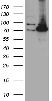 PCCA Antibody - HEK293T cells were transfected with the pCMV6-ENTRY control. (Left lane) or pCMV6-ENTRY PCCA. (Right lane) cDNA for 48 hrs and lysed. Equivalent amounts of cell lysates. (5 ug per lane) were separated by SDS-PAGE and immunoblotted with anti-PCCA. (1:2000)
