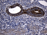 Immunohistochemical staining of paraffin-embedded Human endometrium tissue within the normal limits using anti-PCCA mouse monoclonal antibody. (Heat-induced epitope retrieval by 1mM EDTA in 10mM Tris buffer. (pH8.5) at 120°C for 3 min. (1:500)