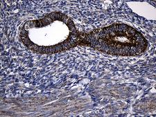 PCCA Antibody - Immunohistochemical staining of paraffin-embedded Human endometrium tissue within the normal limits using anti-PCCA mouse monoclonal antibody. (Heat-induced epitope retrieval by 1mM EDTA in 10mM Tris buffer. (pH8.5) at 120°C for 3 min. (1:500)