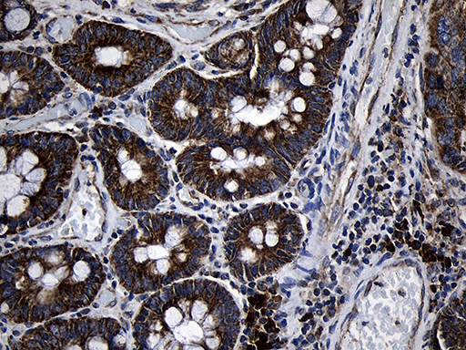 PCCA Antibody - Immunohistochemical staining of paraffin-embedded Adenocarcinoma of Human colon tissue using anti-PCCA mouse monoclonal antibody. (Heat-induced epitope retrieval by 1mM EDTA in 10mM Tris buffer. (pH8.5) at 120°C for 3 min. (1:500)