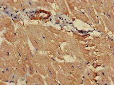 PCCA Antibody - Immunohistochemistry of paraffin-embedded human heart tissue at dilution of 1:100