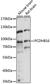 PCDHB16 Antibody - Western blot analysis of extracts of various cell lines, using PCDHB16 antibody at 1:1000 dilution. The secondary antibody used was an HRP Goat Anti-Rabbit IgG (H+L) at 1:10000 dilution. Lysates were loaded 25ug per lane and 3% nonfat dry milk in TBST was used for blocking. An ECL Kit was used for detection and the exposure time was 5s.