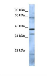 PCGF5 Antibody - 293T cell lysate. Antibody concentration: 1.0 ug/ml. Gel concentration: 12%.  This image was taken for the unconjugated form of this product. Other forms have not been tested.