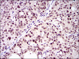 IHC of paraffin-embedded cervical cancer tissues using PCNA mouse monoclonal antibody with DAB staining.