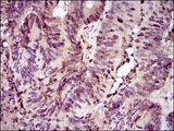 IHC of paraffin-embedded colon cancer tissues using PCNA mouse monoclonal antibody with DAB staining.