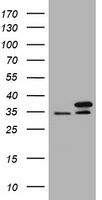 HEK293T cells were transfected with the pCMV6-ENTRY control (Left lane) or pCMV6-ENTRY PCNA (Right lane) cDNA for 48 hrs and lysed. Equivalent amounts of cell lysates (5 ug per lane) were separated by SDS-PAGE and immunoblotted with anti-PCNA.