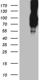 PCSK9 Antibody - HEK293T cells were transfected with the pCMV6-ENTRY control. (Left lane) or pCMV6-ENTRY PCSK9. (Right lane) cDNA for 48 hrs and lysed. Equivalent amounts of cell lysates. (5 ug per lane) were separated by SDS-PAGE and immunoblotted with anti-PCSK9. (1:500)