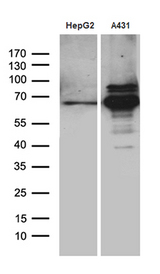 PCSK9 Antibody - Western blot analysis of extracts. (35ug) from 2 different cell lines by using anti-PCSK9 monoclonal antibody. (1:500)