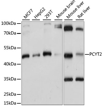PCYT2 / ET Antibody - Western blot analysis of extracts of various cell lines, using PCYT2 antibody at 1:1000 dilution. The secondary antibody used was an HRP Goat Anti-Rabbit IgG (H+L) at 1:10000 dilution. Lysates were loaded 25ug per lane and 3% nonfat dry milk in TBST was used for blocking. An ECL Kit was used for detection and the exposure time was 1s.