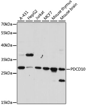 PDCD10 Antibody - Western blot analysis of extracts of various cell lines, using PDCD10 antibody at 1:1000 dilution. The secondary antibody used was an HRP Goat Anti-Rabbit IgG (H+L) at 1:10000 dilution. Lysates were loaded 25ug per lane and 3% nonfat dry milk in TBST was used for blocking. An ECL Kit was used for detection and the exposure time was 90s.