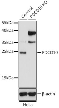PDCD10 Antibody - Western blot analysis of extracts from normal (control) and PDCD10 knockout (KO) HeLa cells, using PDCD10 antibody at 1:1000 dilution. The secondary antibody used was an HRP Goat Anti-Rabbit IgG (H+L) at 1:10000 dilution. Lysates were loaded 25ug per lane and 3% nonfat dry milk in TBST was used for blocking. An ECL Kit was used for detection and the exposure time was 15s.