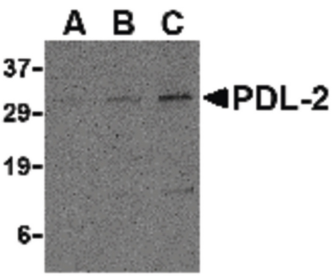 Western blot of PDL-2 in Raji cell lysate with PDL-2 antibody at (A) 0.5, (B) 1 and (C) 2 ug/ml.