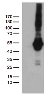 PDCD2L Antibody - HEK293T cells were transfected with the pCMV6-ENTRY control. (Left lane) or pCMV6-ENTRY PDCD2L. (Right lane) cDNA for 48 hrs and lysed. Equivalent amounts of cell lysates. (5 ug per lane) were separated by SDS-PAGE and immunoblotted with anti-PDCD2L. (1:500)
