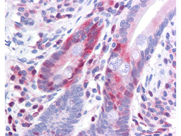 PDCD4 Antibody - Antibody 200-301-964 has been tested in immunohistochemistry, analyzed by an anatomic pathologist and validated for use in IHC applications against formalin-fixed, paraffin-embedded human tissues. The antibody was serially diluted and tested at a range of concentrations on at least 22 different human formalin-fixed, paraffin archival tissues, and positive and negative tissues were scored and compared to the published literature on the expression and function of the gene. A representative image from positively stained small intestine shows the localization of the anti Pdcd4 antibody as the precipitated red signal, with a hematoxylin purple nuclear counterstain.