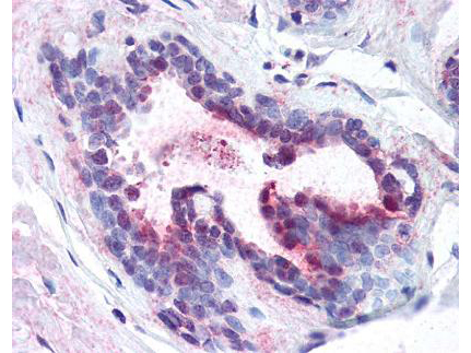 PDCD4 Antibody - Affinity purified anti-Pdcd4 pS457 antibody was used at 1.25 µg/ml to detect signal in a variety of tissues including multi-human, multi-brain and multi-cancer slides. This image shows moderate positive staining of human breast epithelial cells at 40X. Tissue was formalin-fixed and paraffin embedded. The image shows localization of the antibody as the precipitated red signal, with a hematoxylin purple nuclear counterstain.